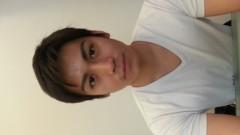 崎本大海 公式ブログ/小顔矯正したんです 画像2