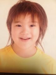 Happiness 公式ブログ/小さい頃 MIYUU 画像1