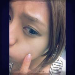 Happiness 公式ブログ/ニキビ!? SAYAKA 画像1