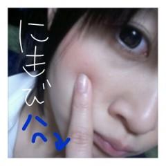 桜木みか(みかてん) 公式ブログ/★ニキビできたなり★ 画像1