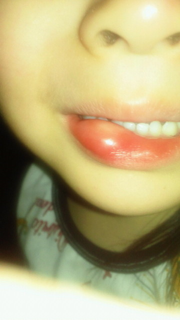 腫れる 唇