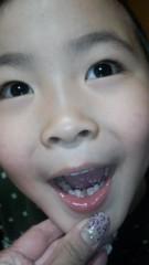 ジャガー横田 公式ブログ/永久歯、大丈夫かな…(^_^;) 画像1