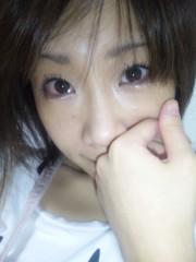 小川みこと 公式ブログ/負傷(;_q) 画像1