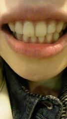 笹井紗々 公式ブログ/歯のホワイトニング 画像1