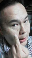 植木紀世彦 公式ブログ/美容はつらいよ 画像1