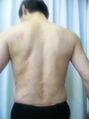 エスパー伊東 公式ブログ/背中の傷 画像1