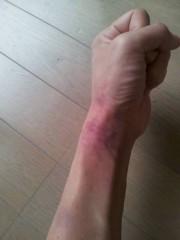 オキャディー 公式ブログ/う…腕が!! 画像1