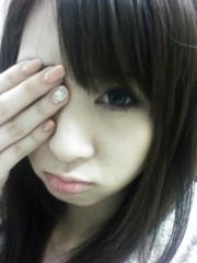 本田かすみ 公式ブログ/ものもらい(´・ω・`) 画像1
