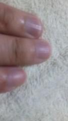 中村純子 公式ブログ/結婚しにくい指の長さ(゜∇゜)!? 画像1