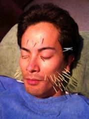 つばさ 公式ブログ/美容鍼灸に行って来ました☆ 画像2