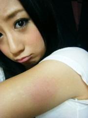 桜木咲子 公式ブログ/いたいたい(PД`q。) 画像1