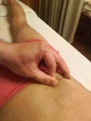 井手らっきょ 公式ブログ/鍼治療 画像1