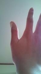 佐々木悠花 公式ブログ/親指負傷 画像1