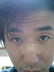 川久保秀一 公式ブログ/負傷 画像1