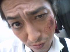 大沢樹生 公式ブログ/痛てぇ… 画像1