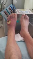 南部虎弾 公式ブログ/あいたたたぁ〜!そりゃないよ!麻酔なしで足をチョキチョキ 画像1