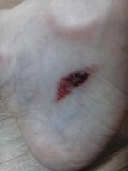 木戸美歩 公式ブログ/負傷 画像1