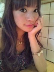 大森美知 公式ブログ/頭ビョ----- ン 画像1
