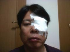 ゴジーラ久山 公式ブログ/白内障手術。 画像1