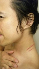 アントニオ小猪木 公式ブログ/ひっかき傷 画像1