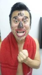 アントニオ小猪木 公式ブログ/こんな顔に! 画像1