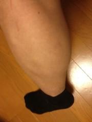 アントニオ小猪木 公式ブログ/左ふくらはぎを痛める 画像1