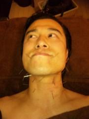 アントニオ小猪木 公式ブログ/アゴに鍼! 画像1