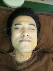 アントニオ小猪木 公式ブログ/はり治療 画像1