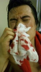アントニオ小猪木 公式ブログ/流血の控室 画像1