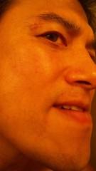 アントニオ小猪木 公式ブログ/テープを剥がす 画像1