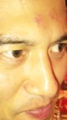 アントニオ小猪木 公式ブログ/パンチのあと 画像1