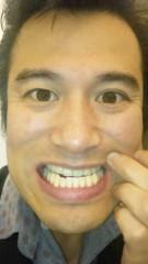 アントニオ小猪木 公式ブログ/ホワイトニングへ 画像1