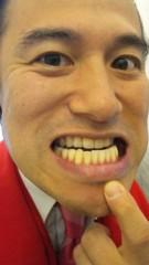 アントニオ小猪木 公式ブログ/歯の大事さ 画像1