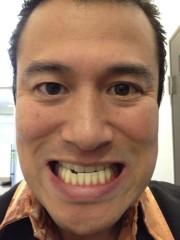 アントニオ小猪木 公式ブログ/歯をホワイトニング 画像1