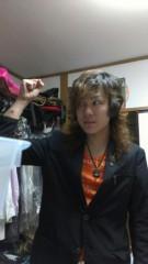 光塚大貴 公式ブログ/丸い火傷 画像1
