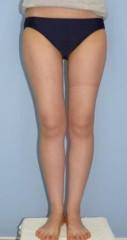 下村奈緒子 公式ブログ/内ももの脂肪が減ると、こんなに違うの図。 画像2