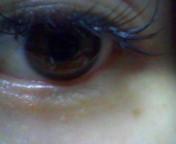 下村奈緒子 公式ブログ/稗粒腫?汗管腫?目の周りのプツプツとは。 画像1