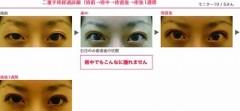 下村奈緒子 公式ブログ/ちょっとご紹介♡人気の二重手術について 画像1