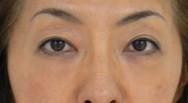 下村奈緒子 公式ブログ/美容整形アドバイザーらしいブログ(笑)目の下のクマ治療� 画像2
