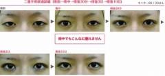 下村奈緒子 公式ブログ/ちょっとご紹介♡人気の二重手術について 画像2