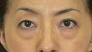 下村奈緒子 公式ブログ/美容整形アドバイザーらしいブログ(笑)目の下のクマ治療� 画像1