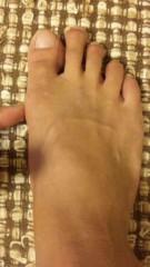 市川勝也 公式ブログ/外反拇趾? 画像1