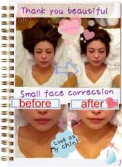 SAYUKI 公式ブログ/小顔矯正いってきたよ!! 画像3