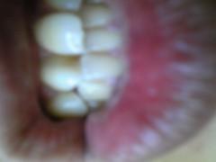 岡元慶太 公式ブログ/歯 画像1